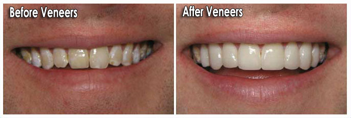 Should I Choose Porcelain Veneers Hillside Dental